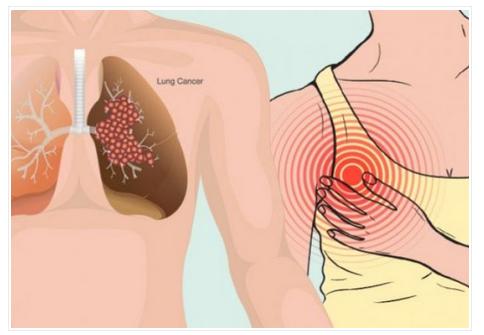 NJEMAČKI NOBELOVAC ZAPREPASTIO SVIJET: Rak se dobija od ove DVIJE NAMIRNICE, da su znali ljudi još bi bili živi