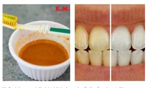 Izbijelite zube i izliječite desni sa ovim receptom: Posebno za pušače i ljubitelje kafe!