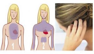Srčani udar se može predvidjeti mjesecima prije: Vaša KOSA vas upozorava, a evo i kako!