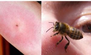 Kada vas ubode osa, pčela ili stršljen – ovo će vas spasiti BOLA i OTOKA