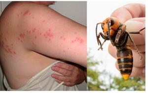 Ubodi insekata mogu biti opasni: Evo šta prvo učiniti